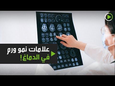 شاهد 6 علامات تُشير إلى نمو ورم في الدماغ